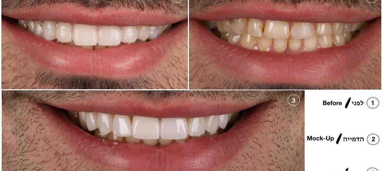 הדמיית שיניים- הכט סמייל