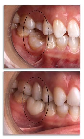 השתלת שיניים- מרפאת הכט סמייל