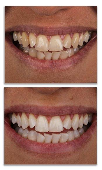 הלבנת שיניים- הכט סמייל