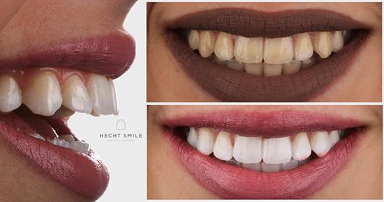 הלבנת שיניים- מרפאת הכט סמייל