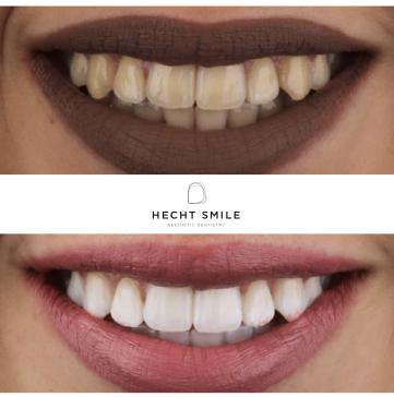 טיפולי הלבנת שיניים- הכט סמייל