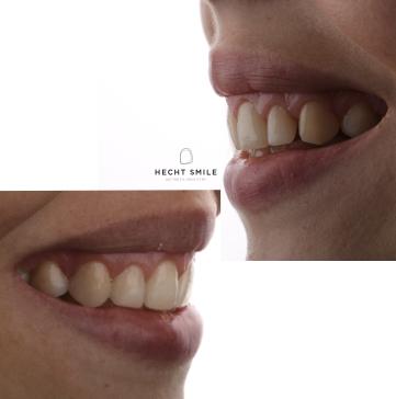 יישור שיניים שקוף- מרפאת הכט סמייל