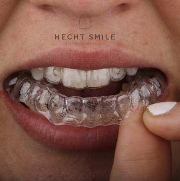 יישור שיניים פנימי שקוף ללא ברזלים- מרפאת הכט סמייל