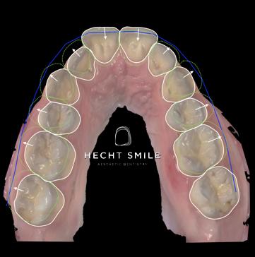 יישור שיניים לא גשר- מרפאת הכט סמייל