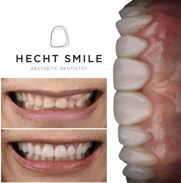 ציפוי שיניים קומפוזיט בשן קידמית- הכט סמייל