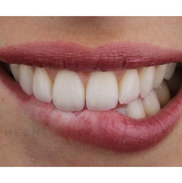 שיניים בריאות וחיוך מושלם- הכט סמייל