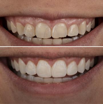 ציפויים לשיניים- הכט סמייל