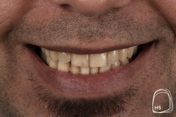 לפני הלבנת שיניים- הכט סמייל