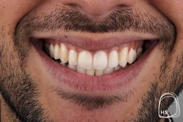אחרי יישור שיניים- הכט סמייל