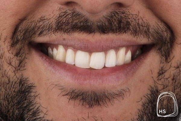 לפני יישור שיניים- הכט סמייל