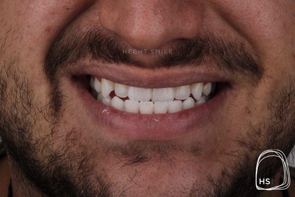 אחרי הלבנת שיניים- הכט סמייל
