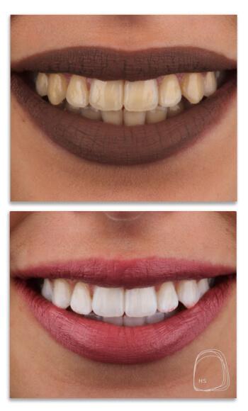 הכט סמייל- הלבנת שיניים