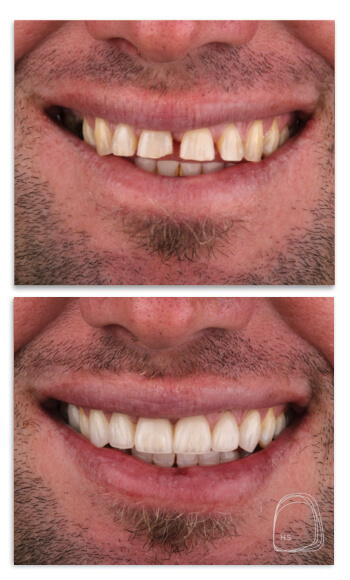 מרפאת הכט סמייל- רפואת שיניים אסתטיים