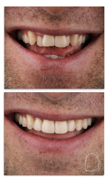 יישור שיניים- מרפאת הכט סמייל