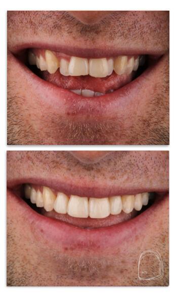 יישור שיניים שקוף- הכט סמייל