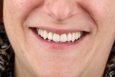 אחרי יישור שיניים + ציפויים - הכט סמייל