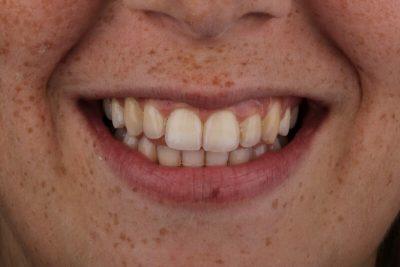 אחרי יישור שיניים - הכט סמייל