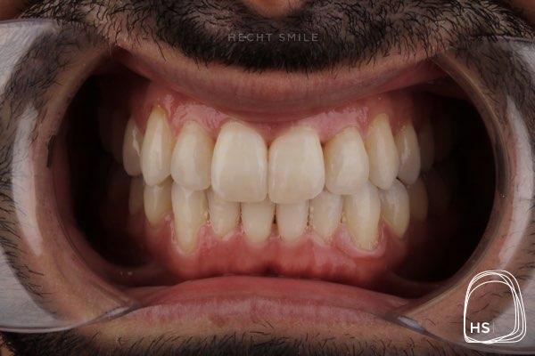 אחרי יישור שיניים אינווזיליין- הכט סמייל