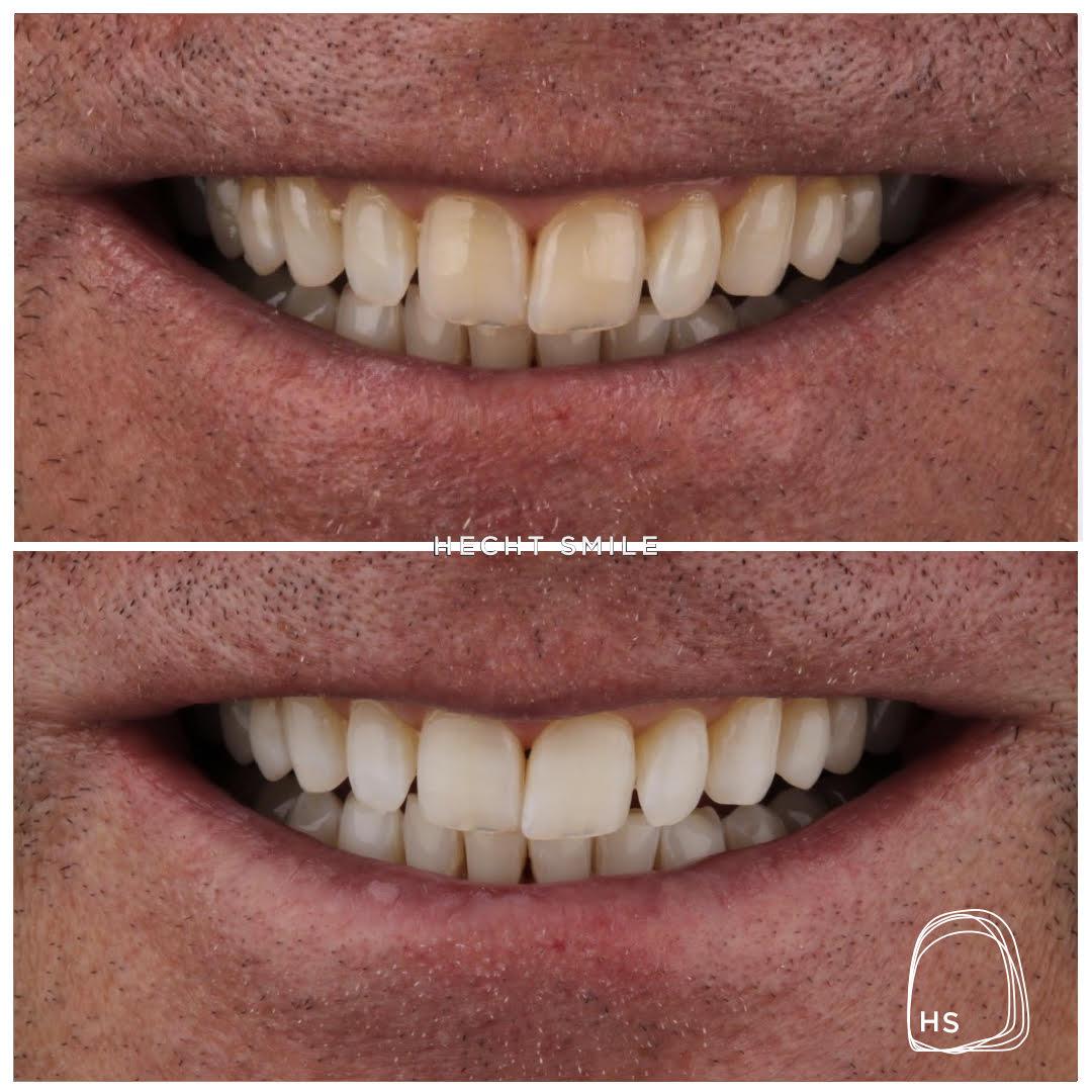 הלבנת שיניים ללא שתלים או כתרים