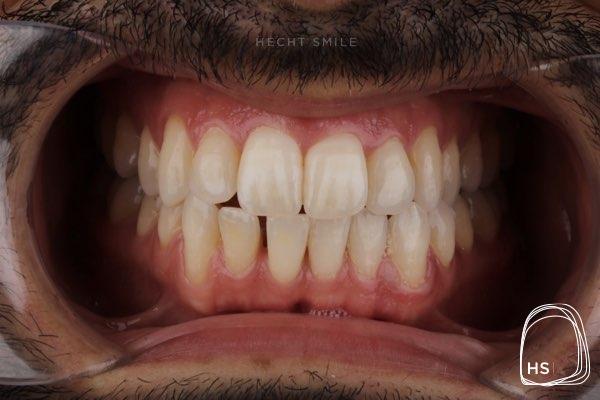 לפני יישור שיניים אינווזיליין- הכט סמייל