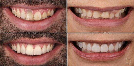 מרפאת הכט סמייל- טיפולי שיניים אסתטיים
