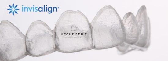 ישור שיניים שקוף- הכט סמייל
