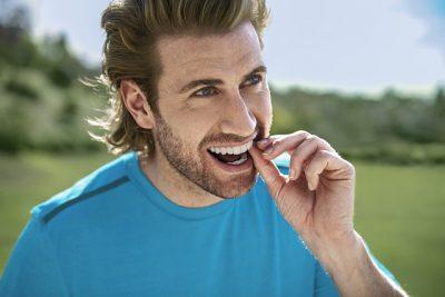 פלטה שקופה ליישור שיניים