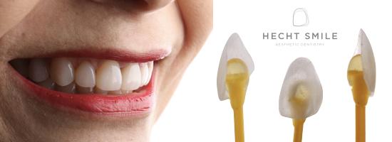 ציפויים לשיניים- מרפאת הכט סמייל