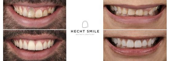 טיפולי שיניים אסתטיים- הכט סמייל