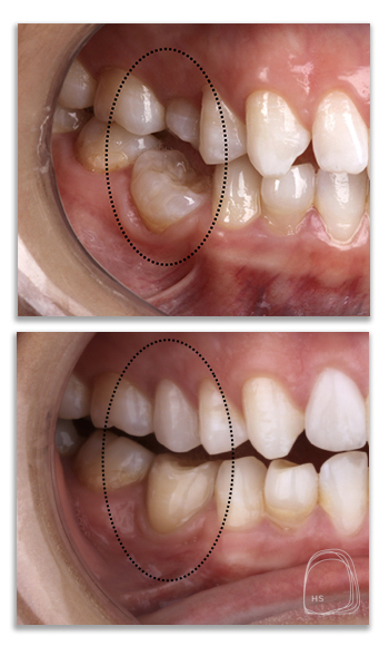 טיפולי שיניים אסטתיים- מרפאת.הכט סמייל