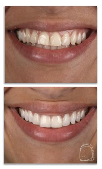 ציפויי חרסינה לשיניים- הכט סמייל