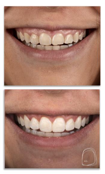 ציפויי שיניים- הכט סמייל